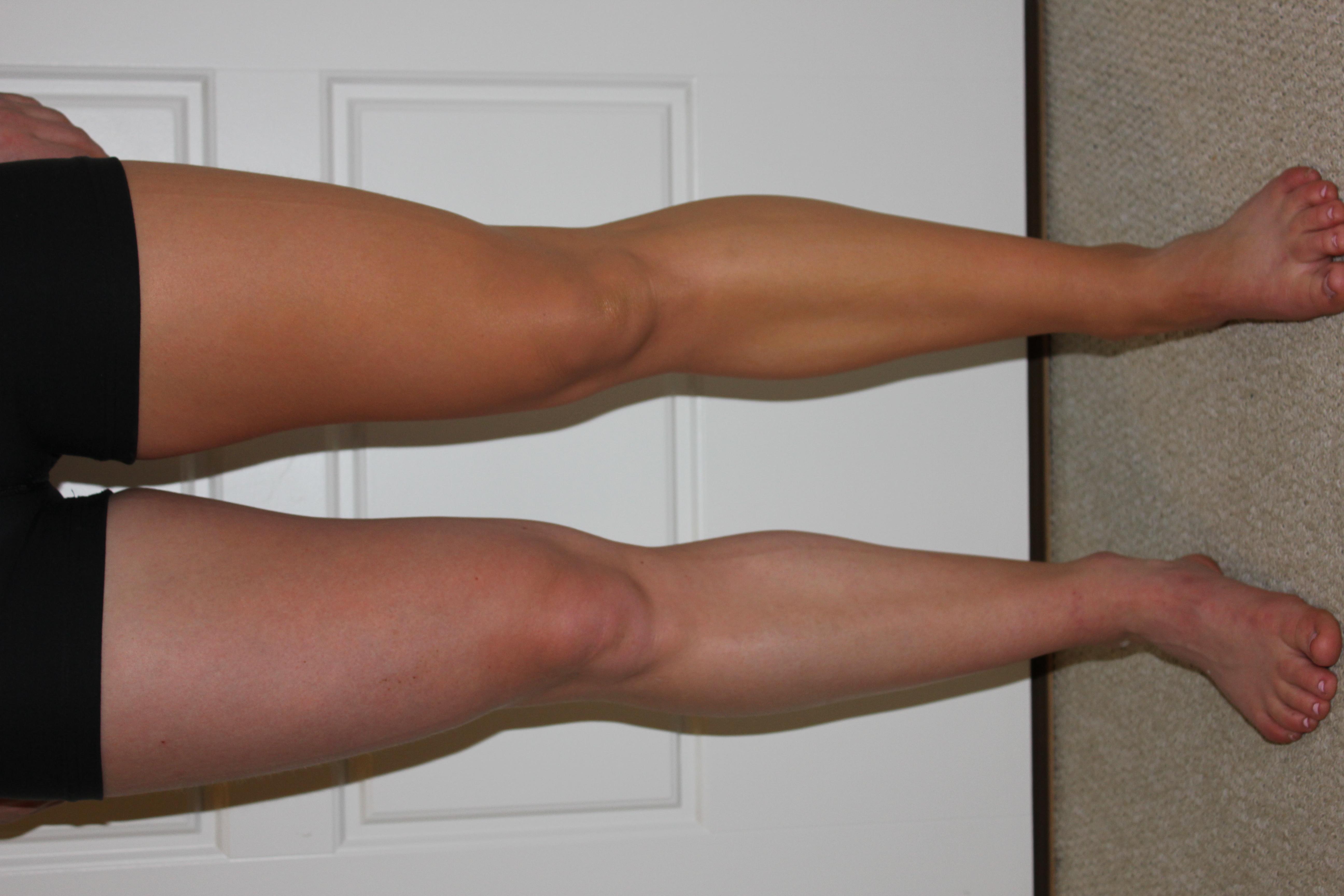 Sally Legs
